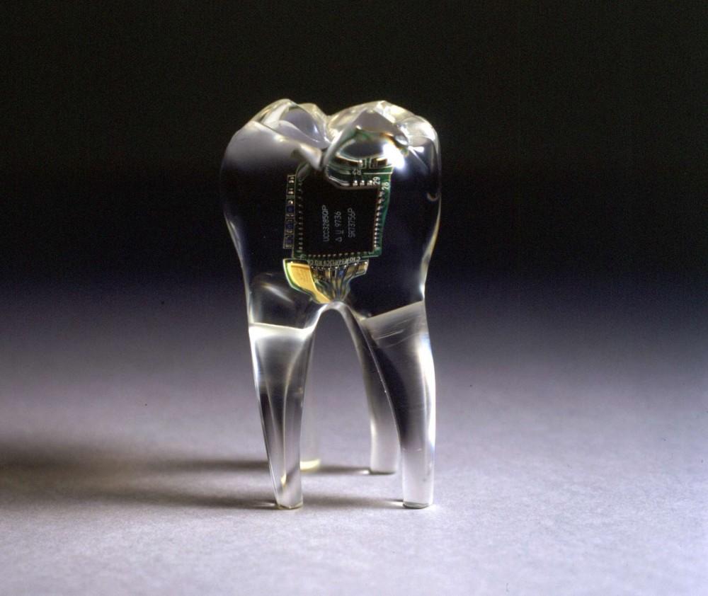 implante teknoloji