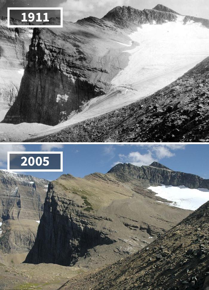 glacier abd